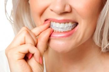 Hampaiden kotivalkaisu on hellävarainen tapa valkaista hampaita