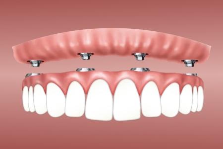 Yläproteesti kiinnitetty hammasimplantein